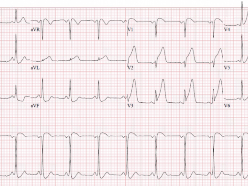 Interesting case of chest pain